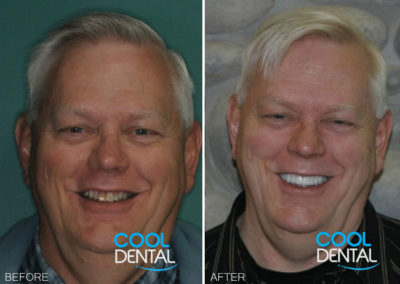 before and after photo of patient smiling 3