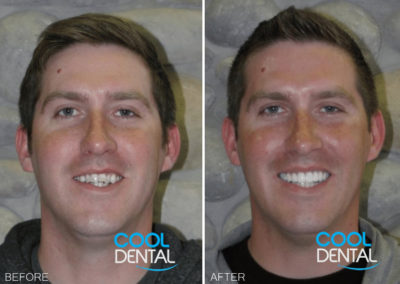 before and after photo of patient smiling 1