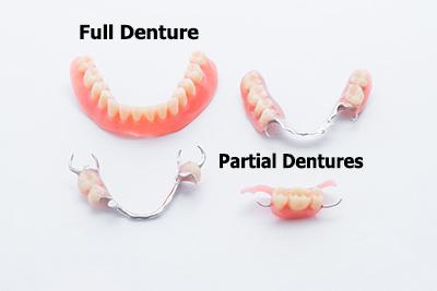 photo of various dentures