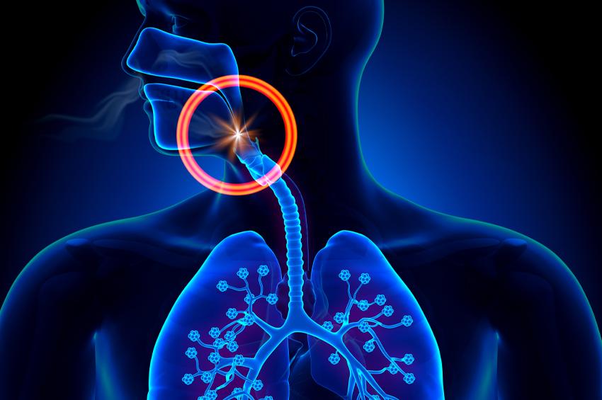illustration of sleep apnea of throat