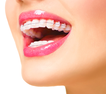 woman with adult braces